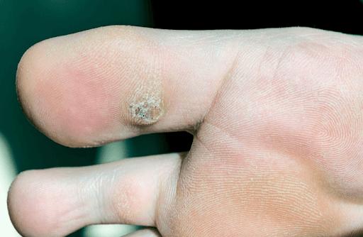 Mụn cóc do virus HPV gây ra
