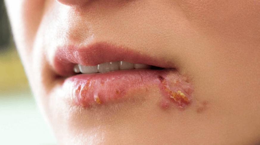 Siêu vi HSV gây ra mụn rộp sinh dục nguy hiểm