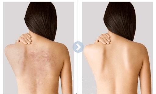 Chanh là nguyên liệu quan trọng đối với cách trị mụn lưng