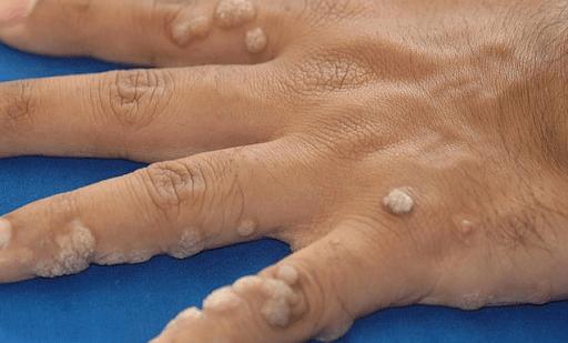 Những trị chứng khi bị mụn cóc