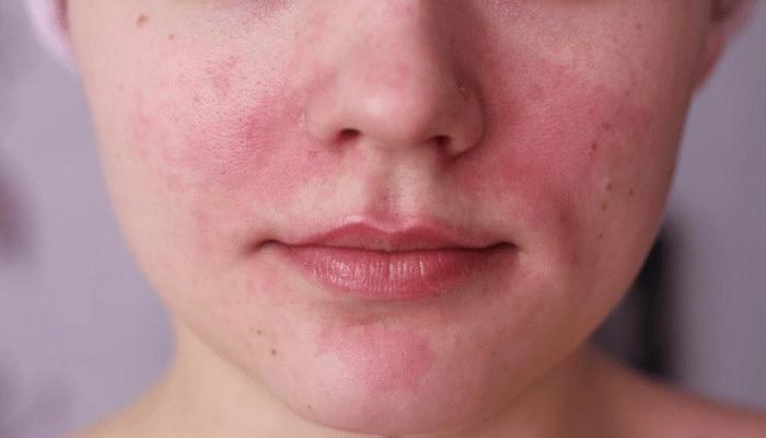Da mặt bị ngứa do dị ứng