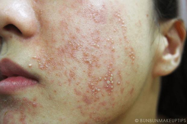 Dị ứng mỹ phẩm khiến da mặt nổi mẩn, ngứa rát