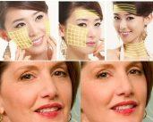 Kỹ thuật căng da mặt bằng chỉ vàng 24k