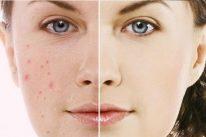 Những cách trị vết thâm trên da mặt hiệu quả