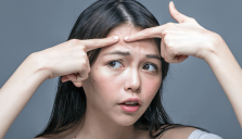 Những nguyên nhân gây mụn phổ biến